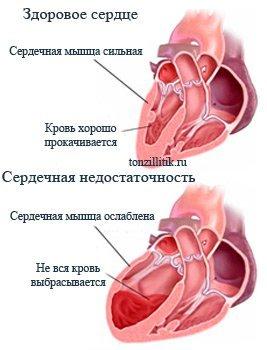 последствия ангины для сердца