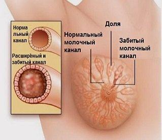 грудь и лактация