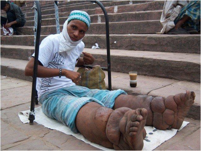 самые опасные заболевания: слоновая болезнь