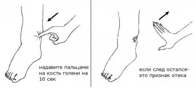 ноги и болезнь