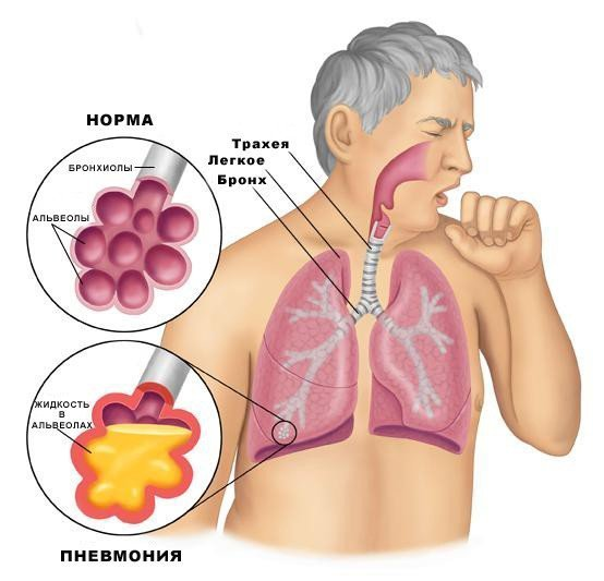 Воспаление легких: симптомы