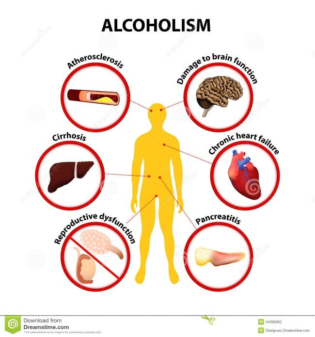 алкоголизм - это болезнь