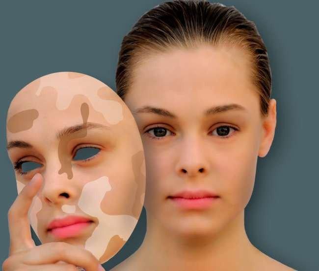 Как лечить белый лишай или белые пятна на лице?