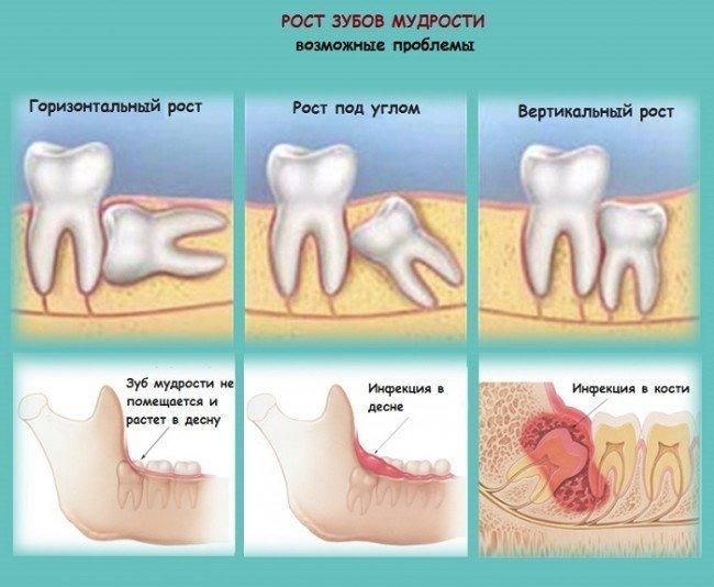 Проблемы при прорезывании зубов мудрости