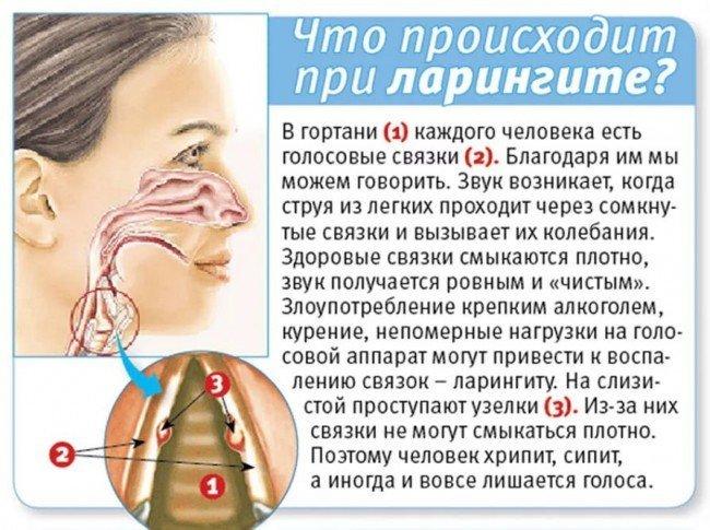 болезнь ларингит
