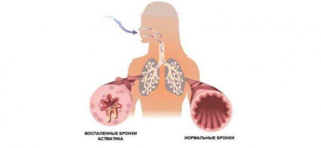 Как вылечить астму народными средствами?