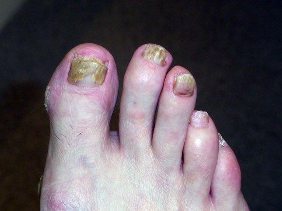 Методы хирургического лечения вросшего ногтя