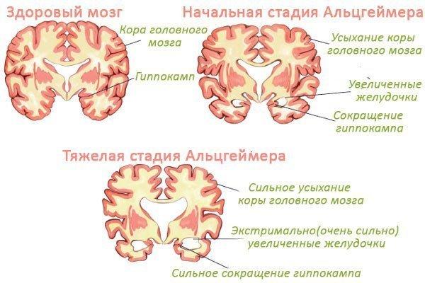Как лечить болезнь альцгеймера на ранних сроках
