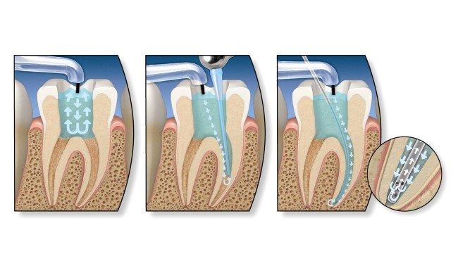 корни зуба после пломбирования