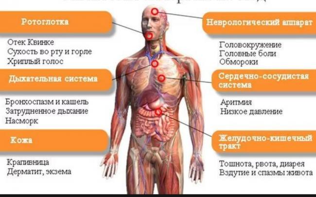 заболевание аллергия