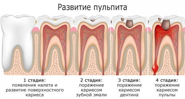 как ставят виниры на зубы фото