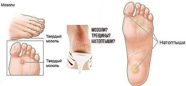 Как лечить водянистые мозоли на пальцах ног