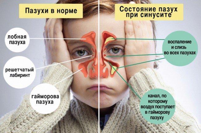 сравнение пазухи в нормальном состоянии и при синусите.