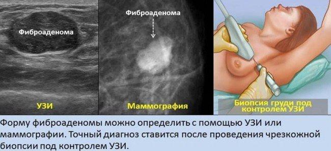 фиброаденома - узи