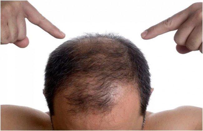 Почему лысеют мужчины: причины