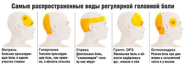 Варианты головной боли