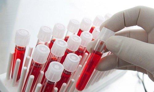 анализ крови: можно ли есть перед анализом