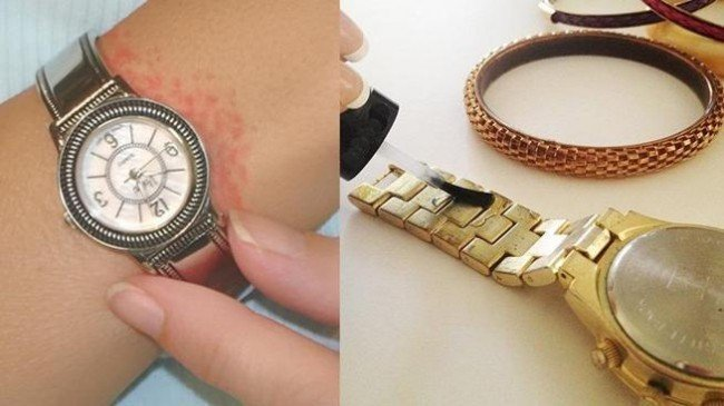 металлические часы - причина дерматита