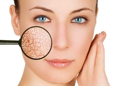 шелушение кожи на лице