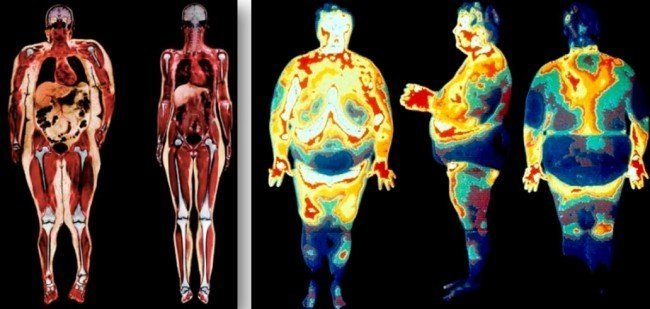 жир человека