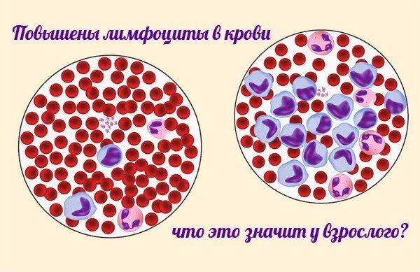 Беременна повышены лимфоциты