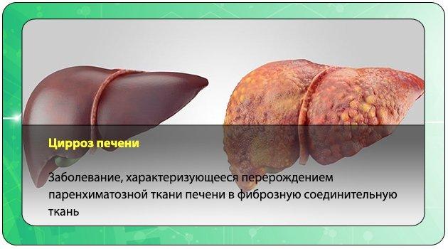 Болезни печени: какие могут быть симптомы, признаки, причины?
