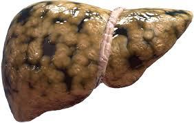 Что за болезнь Стеатогепатит ?