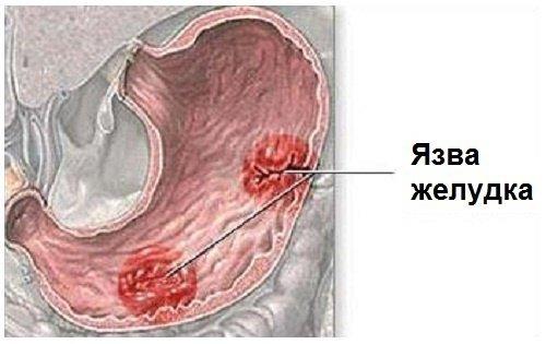 При язвенной болезни желудка человеку очень важно укрепить иммунитет, вводя в рацион блюда из овощей и фруктов.
