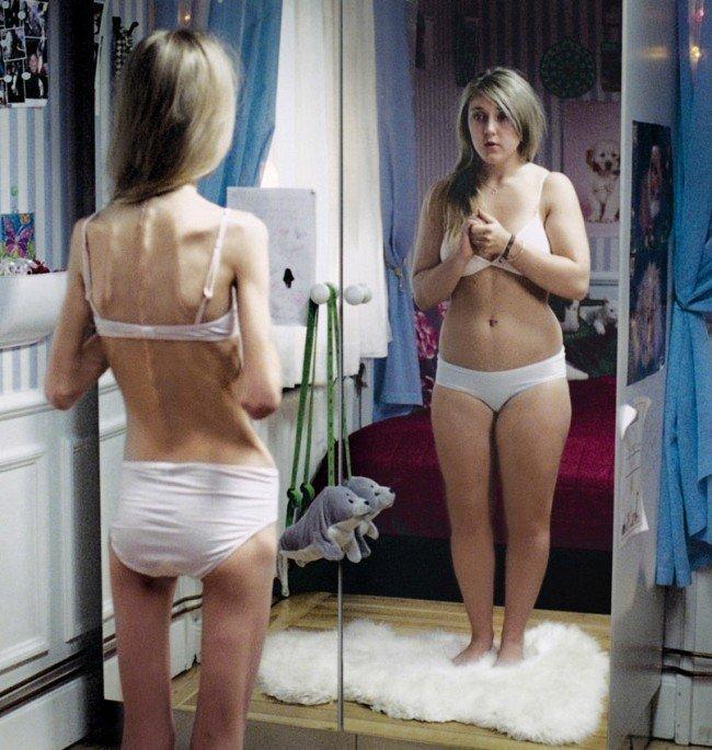 анорексия расстройство пищевого поведения
