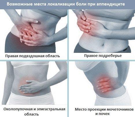 Варианты локализации боли при аппендиксе