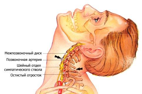 Как развивается шейный остеохондроз?