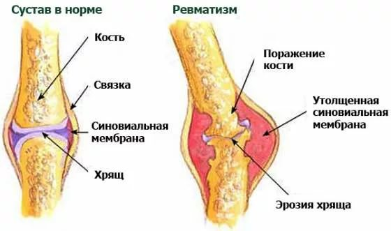 болезнь и симптомы
