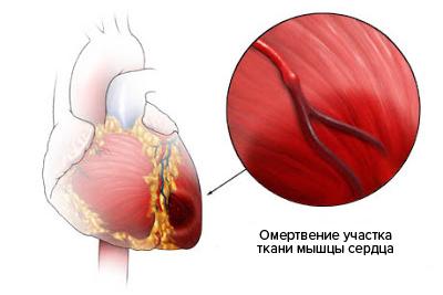 Сердце с отмирающими тканями