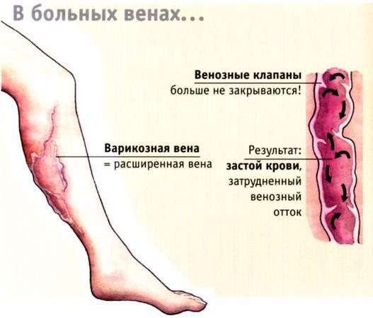 Упражнения в тренажерном зале при варикозе ног для женщин после 50 лет