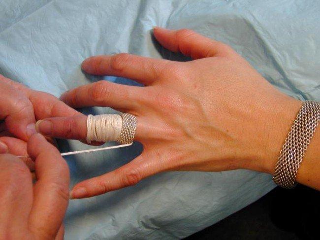 снятие кольца