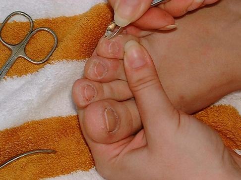 Делала педикюр и поранила палец