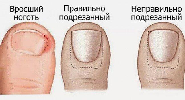 формы подрезания ногтей